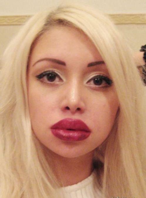 Эволюция губ одной девчины